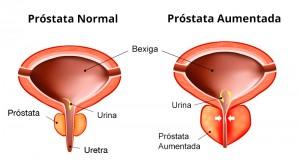 ressecção transuretral de próstata