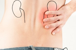 Tudo sobre nefrectomia